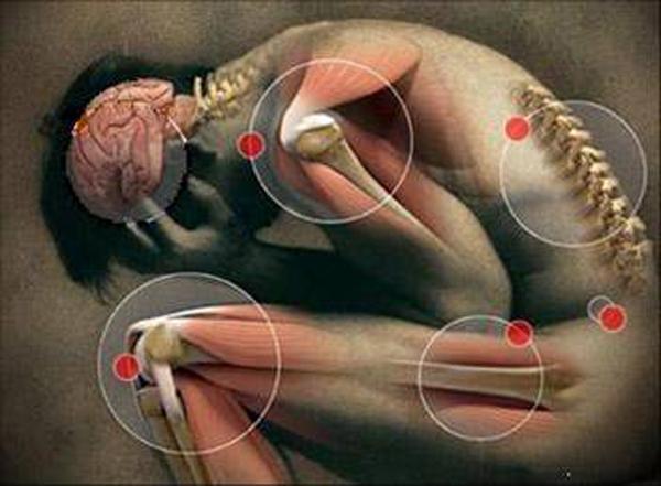 Aliviar la artritis